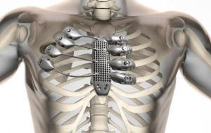 Cassa toracica e sterno stampati titanio in 3D