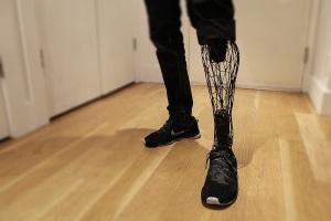 Protesi gamba stampata in 3D